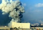 خواننده زن در انفجار بیروت زخمی شد + عکس