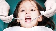تعرفه های جدید دندانپزشکی سال ۹۹ + جزییات