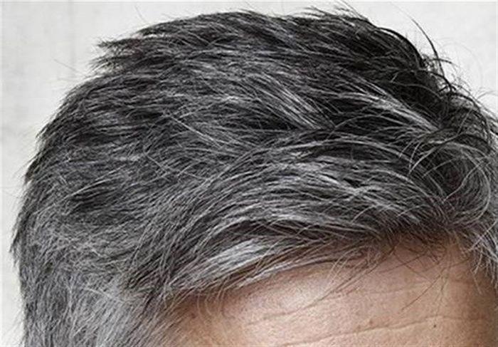 سفید شدن مو قبل ۴۰ سالگی علل جدی دارد