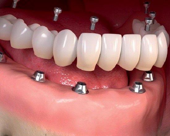 خدمات دندان پزشکی کلینیک دندان پزشکی دایادنت