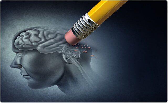 روش هایی برای کاهش ابتلا به آلزایمر